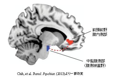 急進展する脳の読み取り技術に歯止めは要るか